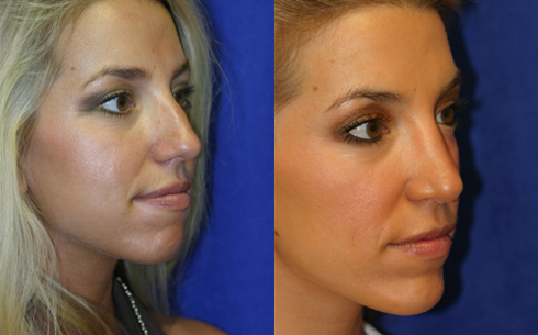 Rhinoplasty Before and After Patient 7