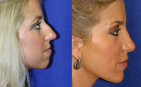 rhinoplasty-success-3