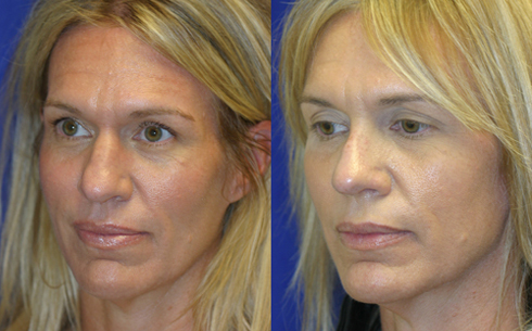 Rhinoplasty Before and After Patient 12
