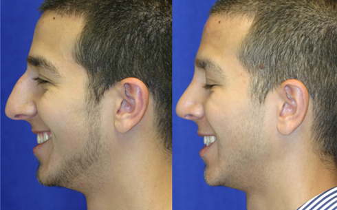 Rhinoplasty Before and After Patient 6