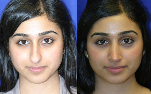 Rhinoplasty Before and After Patient 16