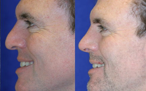 Rhinoplasty Before and After Patient 11
