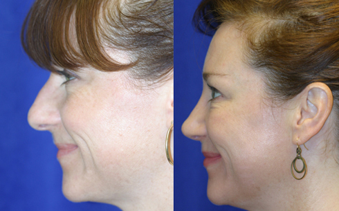 Rhinoplasty Before and After Patient 14