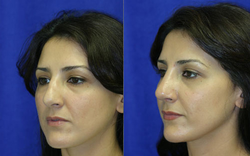 Rhinoplasty Before and After Patient 4