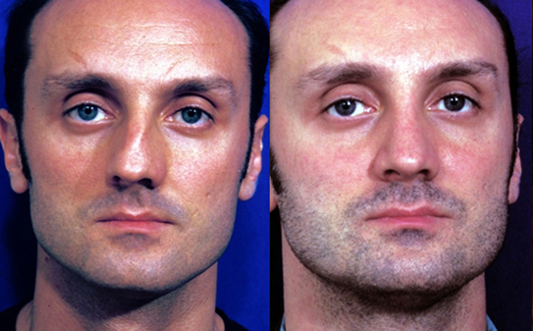 Rhinoplasty Before and After Patient 03