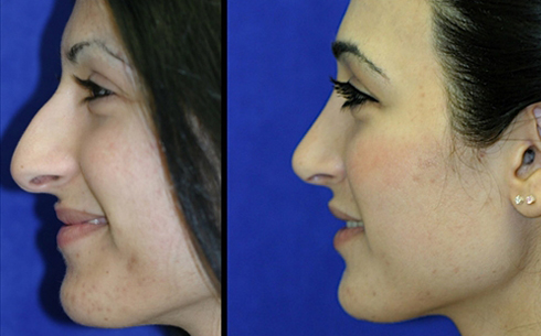 Rhinoplasty Before and After Patient 1