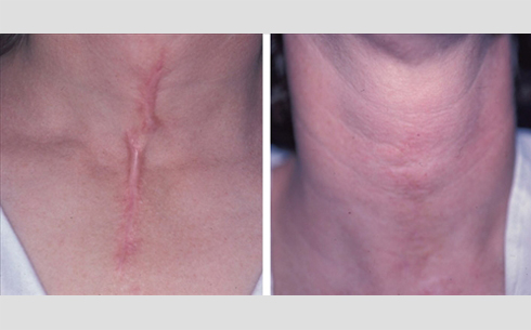 Scar Revision Before and After Patient 1