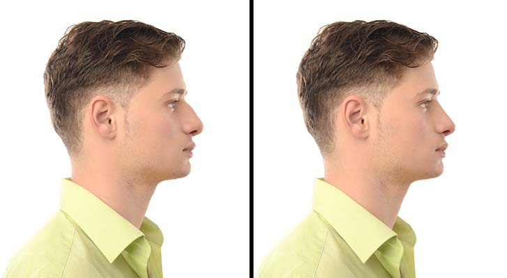 rhinoplasty-reasons