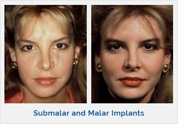 Submalar and Malar Implants