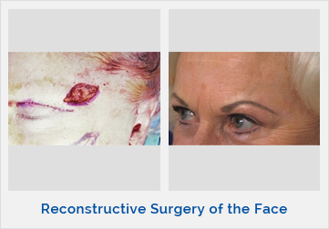 Reconstructive Surgery of the Face