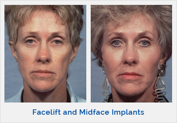 Facelift and Midface Implants