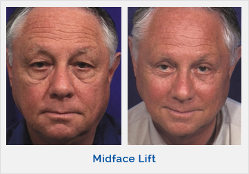 Midface Lift