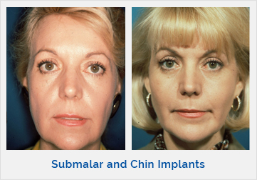 Submalar and Chin Implants