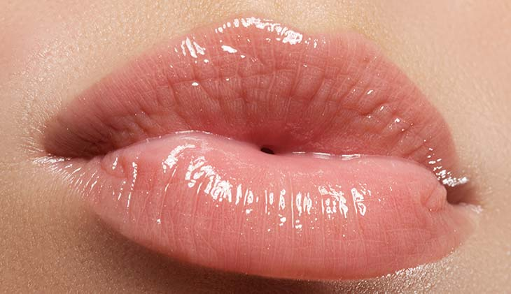lady-lip-injections