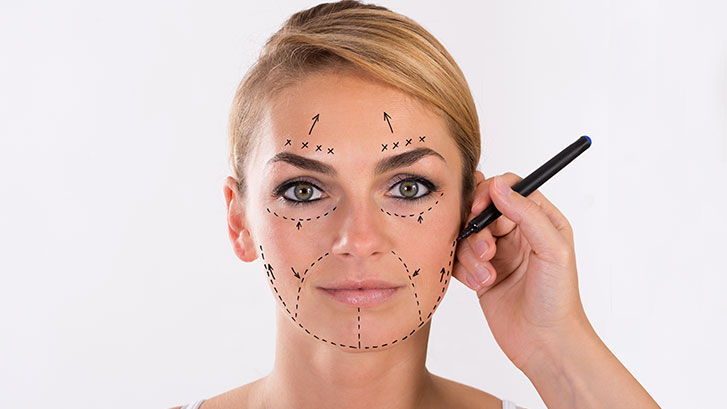 types-of-facelifts-woman