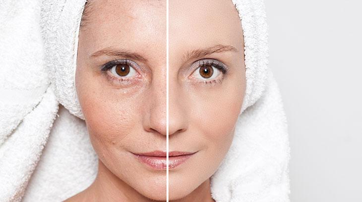 premature-facial-aging