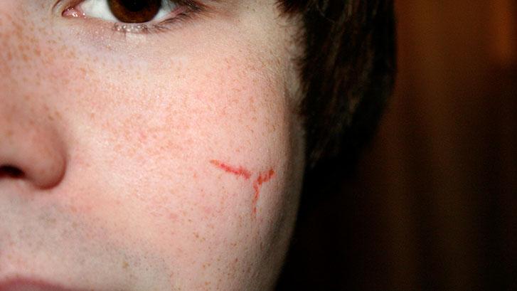 male-facial-scar